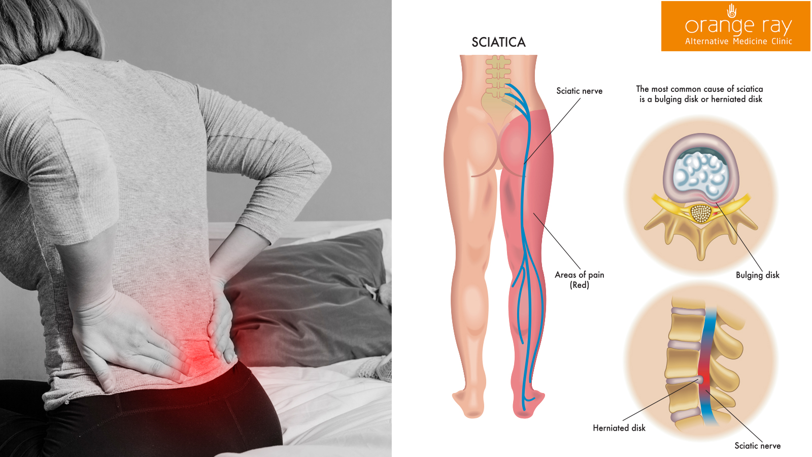 Orange-Ray-Sciatica-treatment-in-Chennai